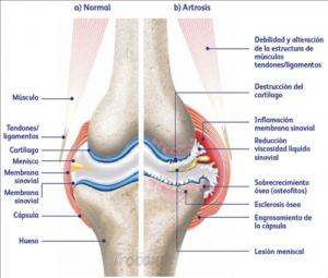 Tratamiento artrosis perros